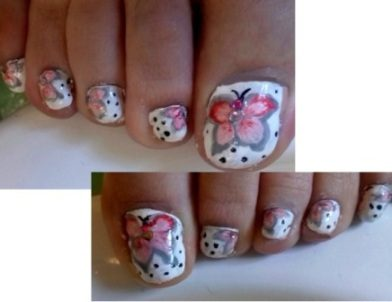 Butterfly toe nails