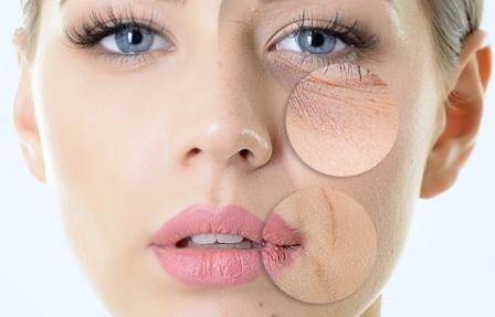 Rimedi naturali per la pelle del viso screpolata