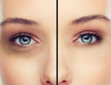 Come eliminare le occhiaie naturalmente